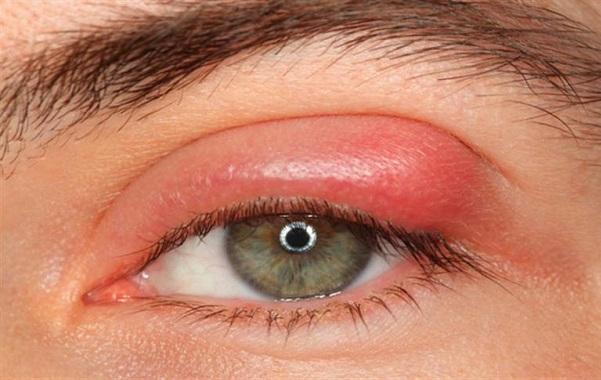 1f43deff545e Orzaiolo nell occhio  sintomi